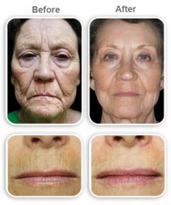 لیزر جوانسازی پوست