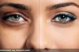 کبودی دور چشم و روش های مقابله با آن