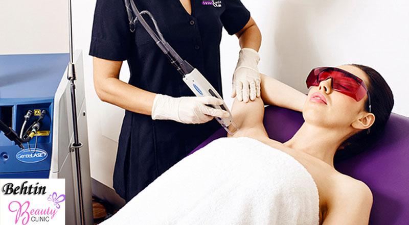 کلینیک لیزر مو , لیزر مو با دستگاه الکس