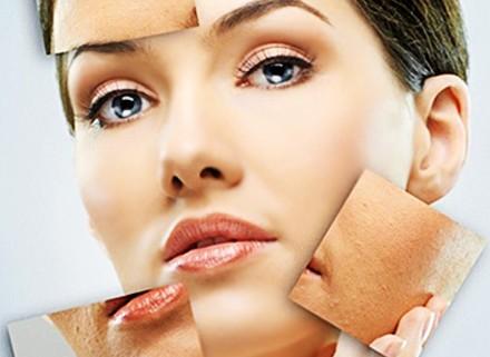 کلینیک زیبایی , لایه برداری پوست